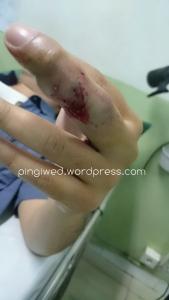 luka dibagian luar jari