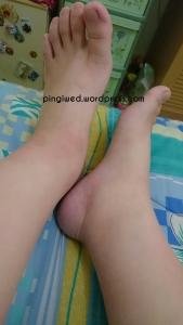 pergelangan kaki yang membengkak